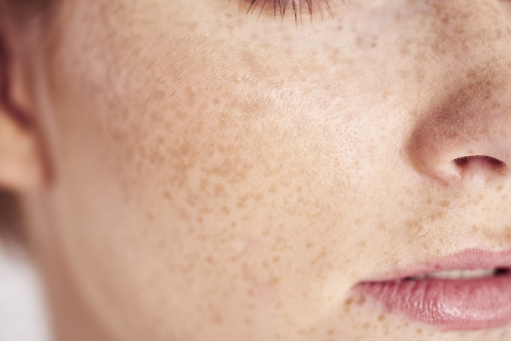 Hydroquinone is the active ingredient in skin 'lightening' creams that work to remove pigmentation.